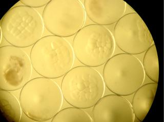 受精卵イメージ